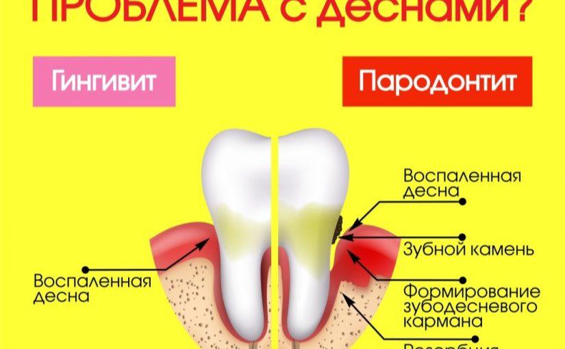 Для профилактики пародонтита 2 раза в год делайте профессиональную гигиеническую чистку зубов