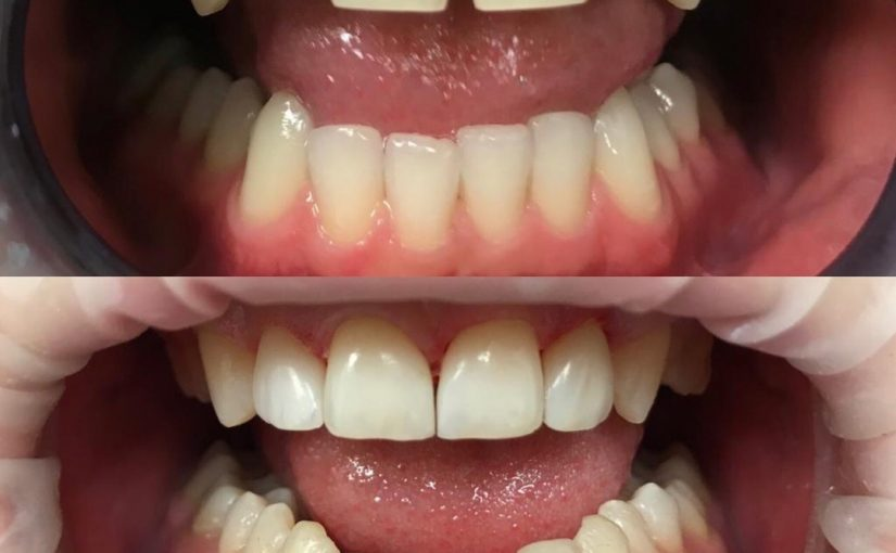 Эстетическая реставрация передних зубов нанокомпозитным материалом Enamel Plus