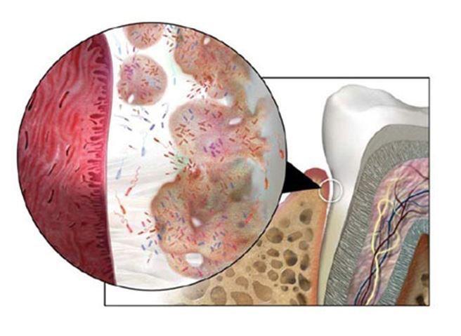Как остановить воспалительные процессы в тканях пародонта: сразу «хирургия» или пробовать лечение на аппарате Vector?