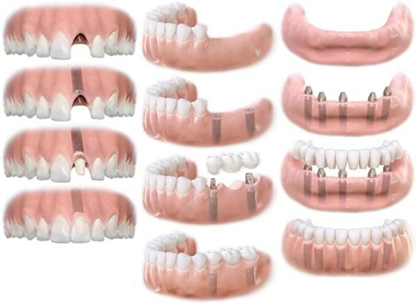 Комфортно ли жить без зубов? Узнайте, что дает имплантация и почему лучше с ней не тянуть