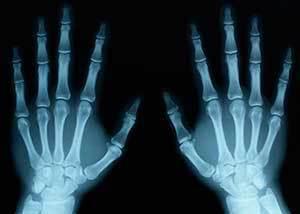Точные и безопасные методы рентгенодиагностики