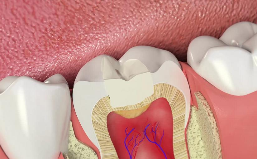 Зачем менять старую пломбу, если «всё хорошо» и зуб «не беспокоит»?