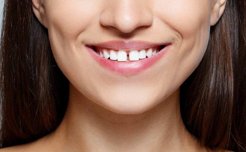 Как убрать Диастему – промежуток между передними зубами