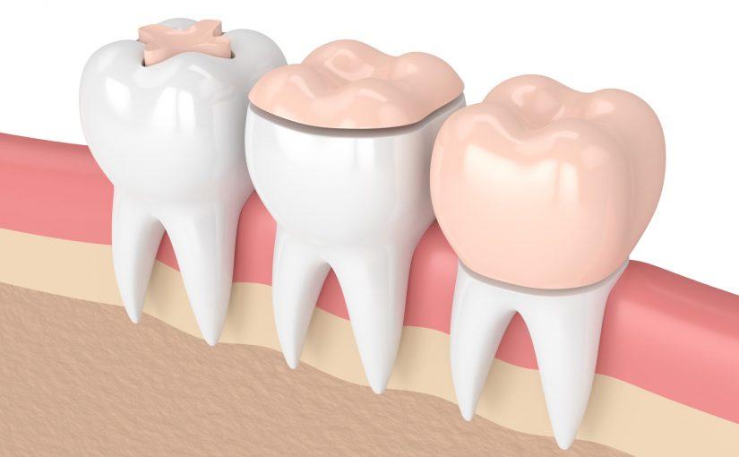 Чем руководствуется врач-стоматолог предлагая восстановить зуб: пломбой, вкладкой, виниром или коронкой?