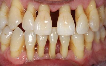 Как сохранить зубы при пародонтите и пародонтозе