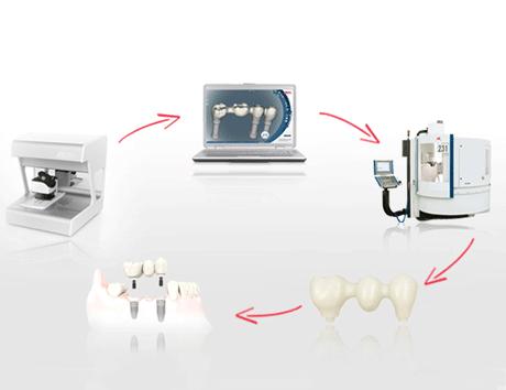 Что выбрать: хороший или лучший метод протезирования зубов? Поговорим о возможностях NobelProcera