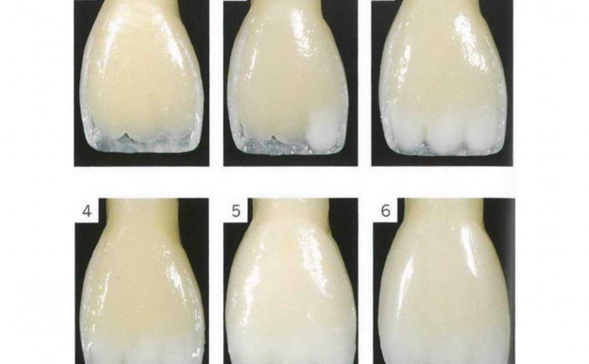 Восстановление естественной красоты зубов нанокомпозитным материалом Enamel Plus (красота по-итальянски)